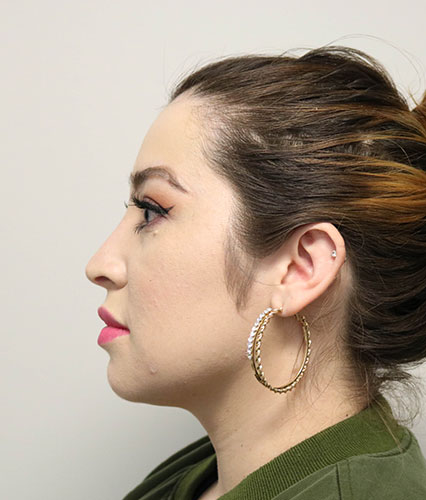 Rhinoplasty Cases | Raleigh, NC | Triangle Facial Plastic ...