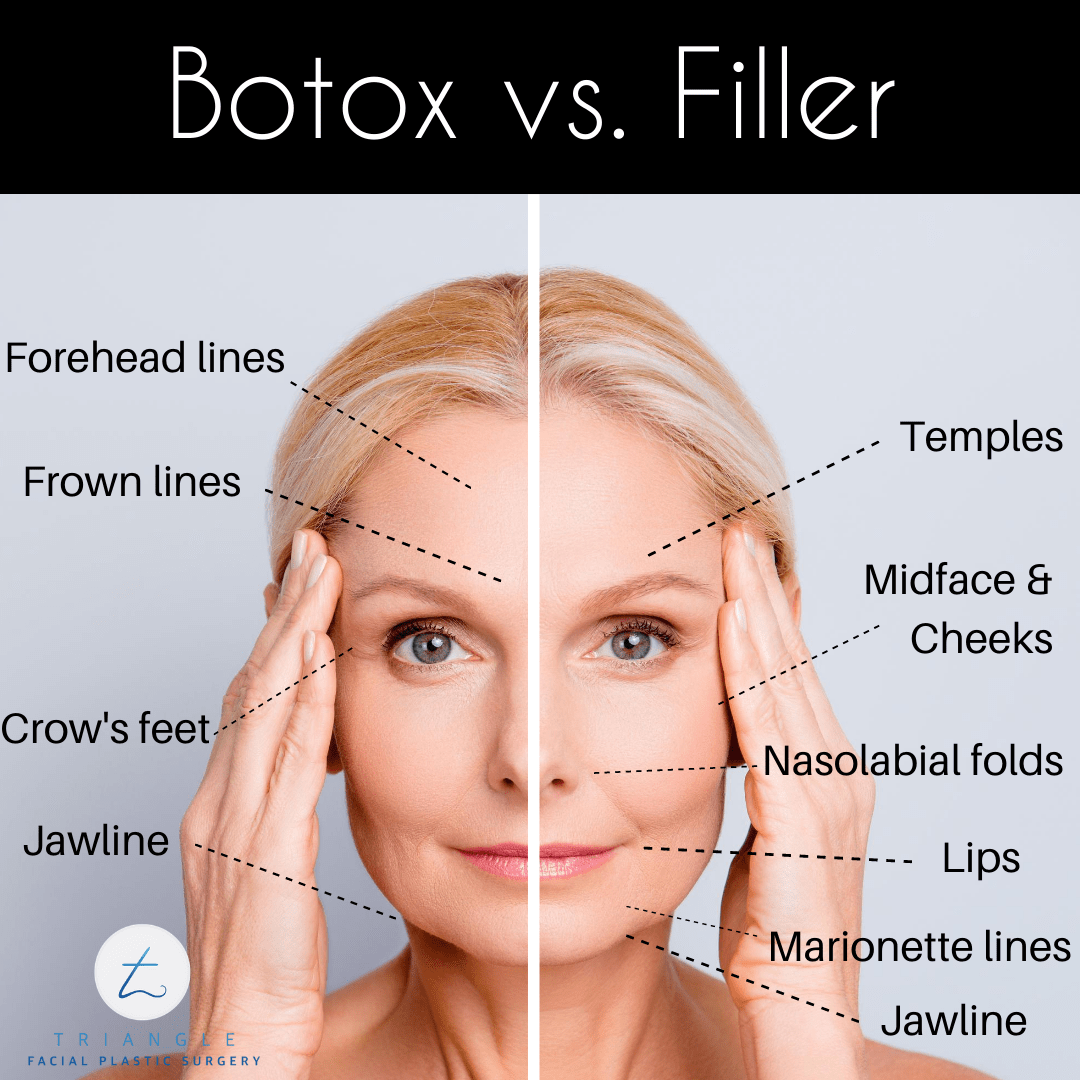 Botox vs. Filler
